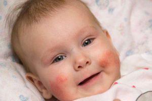 Bei Säuglingen zeigt sich die Neigung zu Neurodermitis häufig zuerst auf der Wangenpartie.