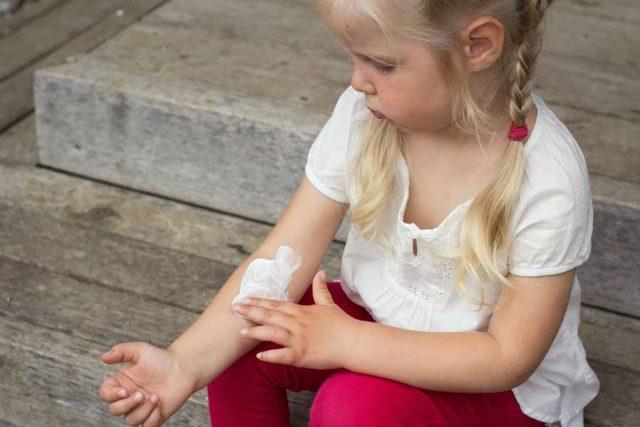 Kinderhaut ist besonders sensibel. Trockene Stellen in den Ellenbeugen können auf Neurodermitis hinweisen.