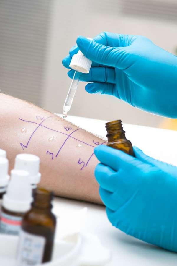 Hyposensibilisierung: Mit einem Allergietest lässt sich ermitteln, welche Pollen die Beschwerden auslösen. Dann kann eine spezifische Immuntherapie geplant werden.